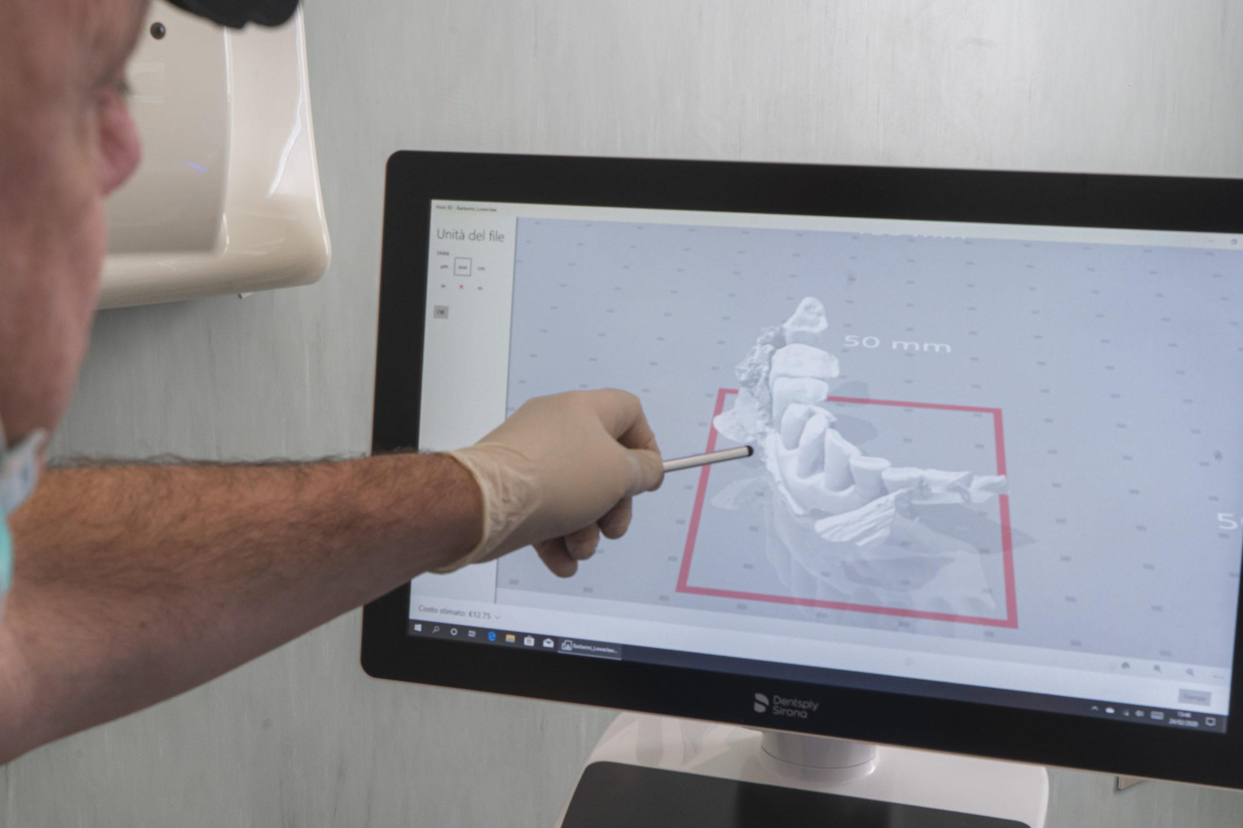 Scanner 3Dper impronte